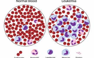 Вирусный лейкоз у кошек лечение