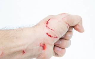 Чем лечить укус кошки опухла рука